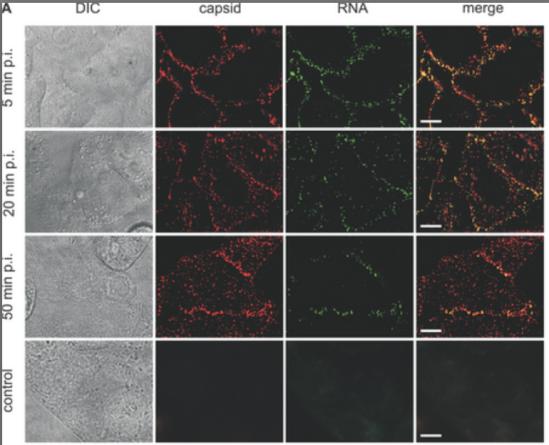 Fig. 7: Virioni de polio, marcați (capsida cu roșu, ARN-ul cu verde) observați la microscop în procesul de infectare a celulei. Jos sunt celule de control. Sursa: Brandenburg et al. (2007).