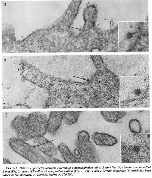 Fig. 6: Particule virale polio observate la microscopul electronic în afara și în interiorul celulelor. Sursa: Dunnebacke, Levinthal & Williams (1969).