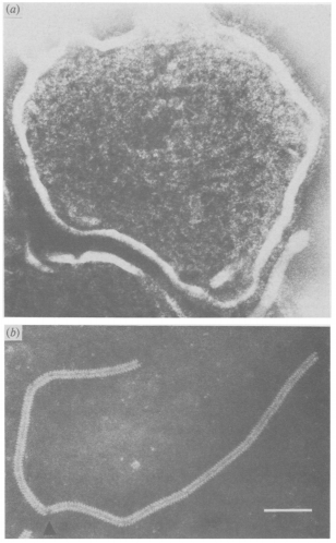 Fig. 13: (a) Virion de pojar purificat, observat la microscopul electronic. (b) Nucleocapsidă. Sursa: Lund et al. (1984).