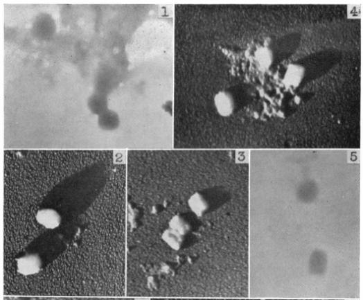 Fig. 11: Virusul variolei, izolat și purificat, observat la microscopul electronic (imaginile 1-4). În imaginile 2-4 a fost folosită umbrirea cu aur34 pentru creșterea contrastului și observarea mai clară. Sursa: Nagler & Rake (1948).